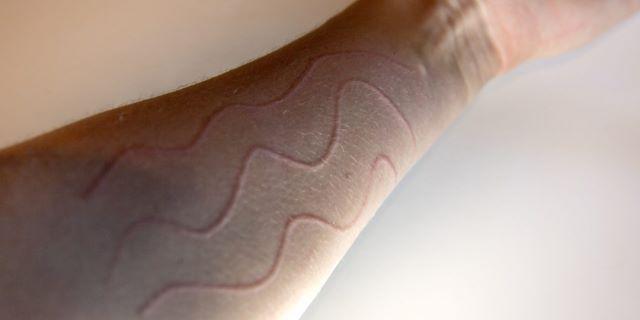 Dermografismo: quando la pelle ci parla (e come rispondere)