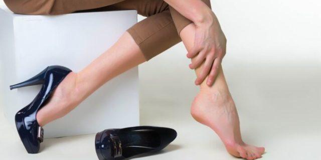 Vene varicose: 3 segnali che ti dicono che potresti soffrirne e come prevenirle