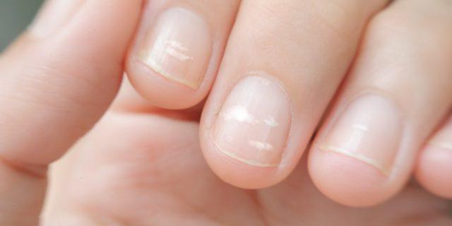 Linee di Beau sulle unghie: come riconoscerle e come trattarle