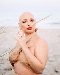 Sono calva e mi amo: dall'alopecia ho imparato che una donna non è i suoi capelli