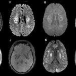 Come il coronavirus attacca il cervello