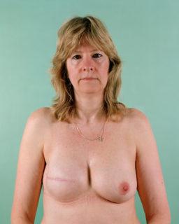 """""""Questo è il cancro al seno"""": 6 donne lo mostrano davanti all'obiettivo"""