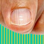 Cosa dicono le righe verticali delle unghie sul tuo stato di salute