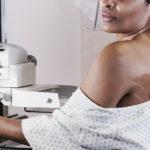 Quanti pap test e mammografie NON sono stati fatti causa Covid-19 e cosa significa