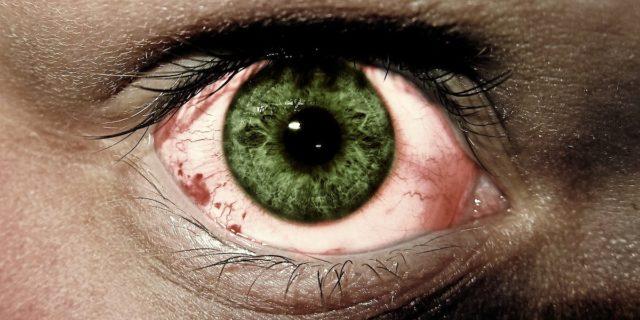 Blefarocongiuntivite: cos'è, quali sono le cause e come si cura