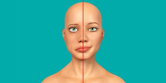 Le cause della paralisi di Bell, che blocca e 'fa cadere' metà viso