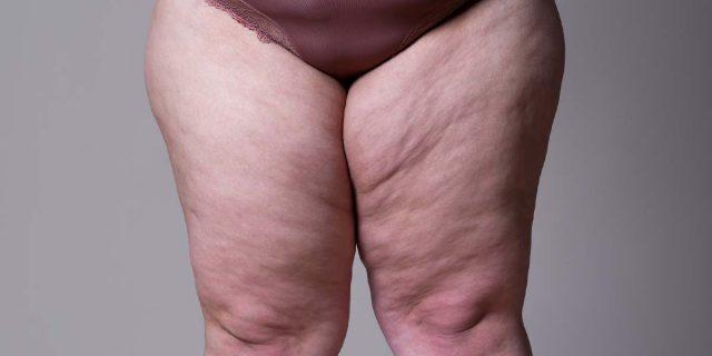 Lipedema, quando il grasso si accumula nelle gambe e genera un dolore intenso