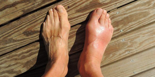 Cos'è il piede diabetico e quali sono i sintomi iniziali  da tenere sotto controllo