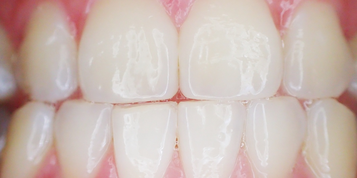 Dente scheggiato