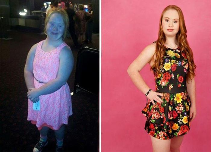 Madeline Stuart, Affetta dalla Sindrome di Down Sogna di Fare la Modella