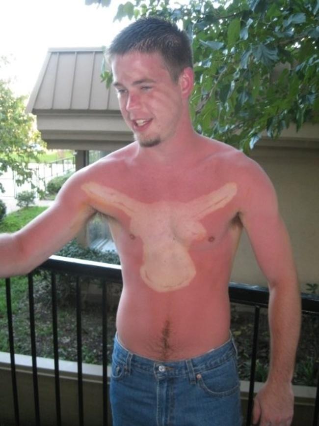 Mai Addormentarsi Sotto al Sole: Ecco le Peggiori Scottature di Sempre!