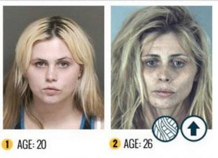I terribili effetti della droga sul nostro corpo le foto - Sali da bagno droga effetti ...