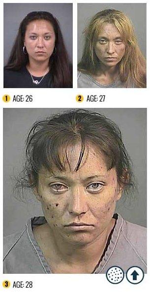 I Terribili Effetti della Droga sul Nostro Corpo: le Foto Shock