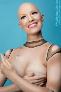 """My Breast Choice: il racconto """"ironico"""" in immagini della mastectomia di Aniela"""