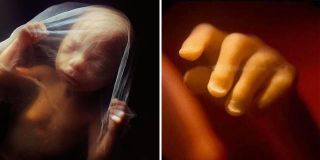Cosa Succede ad un Bambino nella Pancia della Mamma? Lo Svelano Queste 13 Foto