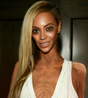 Anorexic Celebrities Contest: Come Sarebbero 14 Star Se Soffrissero di Anoressia