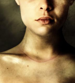 """Scars of Life: le Toccanti Storie di 20 Donne """"Scritte"""" con le Cicatrici"""