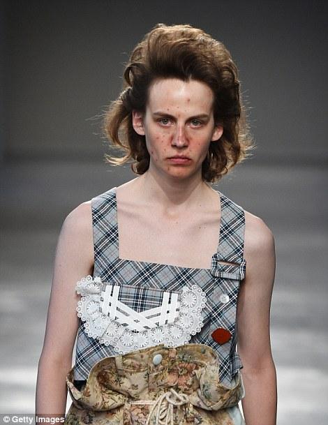 Nuova moda o provocazione: ecco perché a Milano sfilano i modelli con l'acne