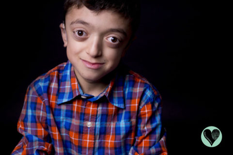 SameButDifferent: le foto dei bambini con malattie rare contro i pregiudizi