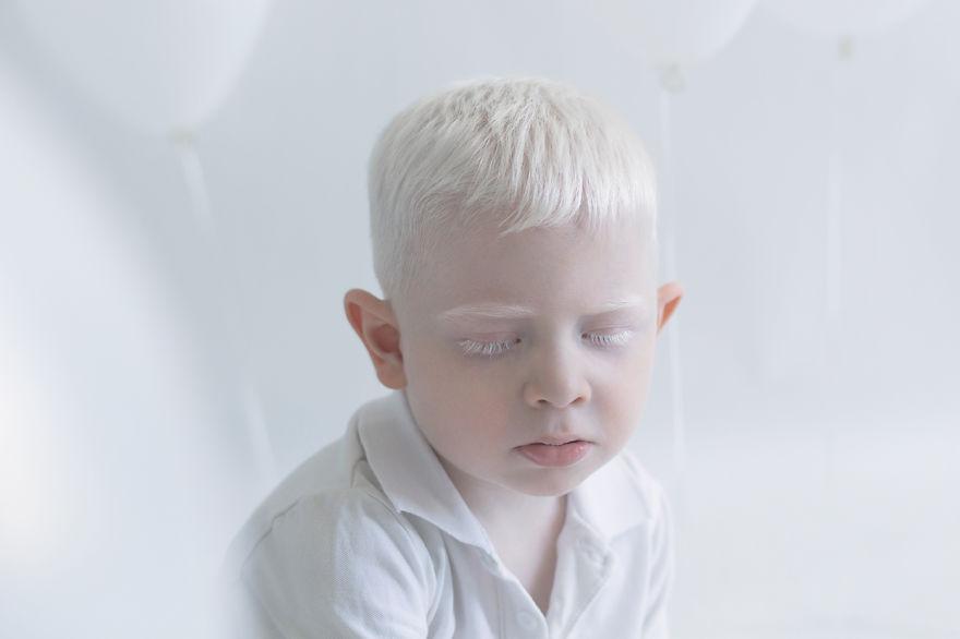 La bellezza ipnotica delle persone albine in 11 scatti