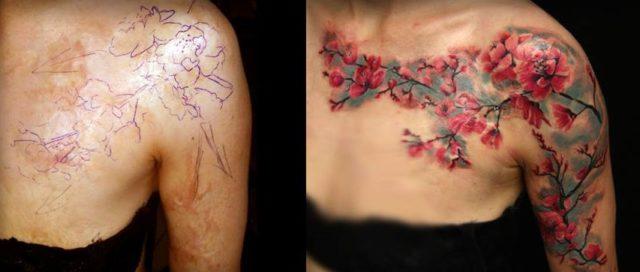 24 geniali tatuaggi fatti con l'aiuto di nei, macchie o malattie della pelle
