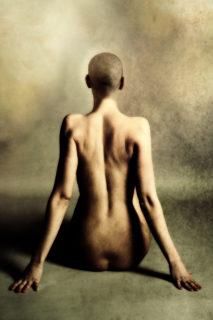 """""""Scars of life"""": cartoline dall'inferno (e ritorno) di 26 donne"""