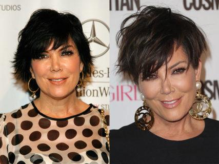 I Kardashian prima e dopo... tanta chirurgia