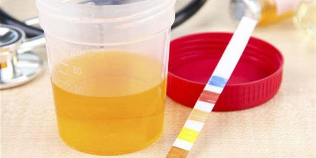 Pipì: perché è gialla, c'è chi la beve e altre 13 cose che non sai
