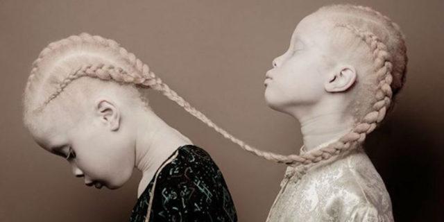 La bellezza ipnotica delle gemelle albine