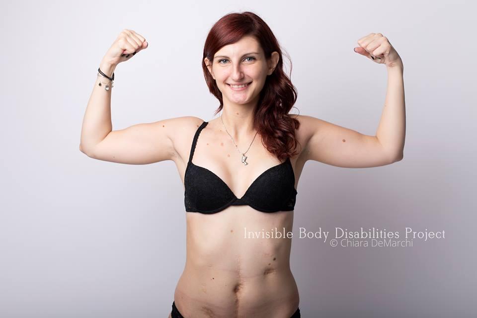Invisible Body Disabilities, la bellezza delle guerriere che non si nascondono