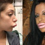 Labbra rifatte: 16 persone che non hanno il senso della misura