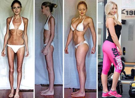 Rinascere: 12 foto prima e dopo l'anoressia
