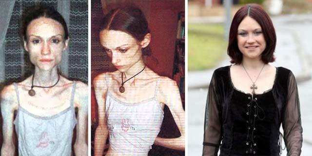 Rinascere: 16 foto prima e dopo l'anoressia