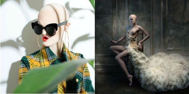 Melanie, top model nonostante la sua rara malattia genetica