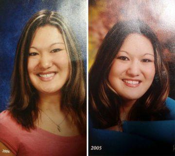 """La sindrome di Sara, 27 anni: """"Non mi nascondo più, perché sono bella"""""""