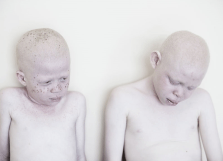 """12 immagini per salvare i bimbi albini nel paese dove sono """"demoni"""" da uccidere"""