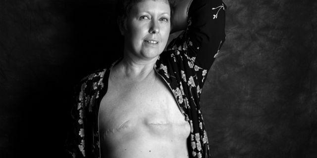 """""""Mastectomy"""": """"Siamo vive, belle e forti anche senza un pezzo"""""""