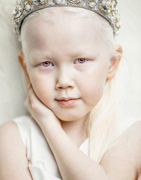"Nariyana, la Biancaneve siberiana affetta da albinismo: ""Deciderà lei chi vorrà essere"""