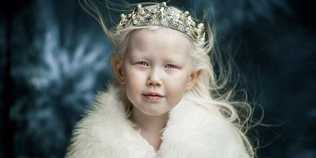 Nariyana, la Biancaneve siberiana affetta da albinismo ...