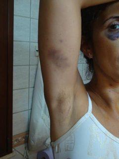 """Lidia Vivoli: """"Vi mostro il mio corpo dilaniato da chi mi chiamava 'amore'"""""""