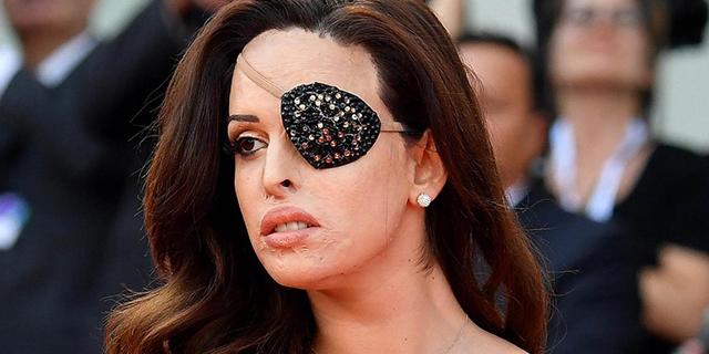 """Gessica Notaro mostra l'occhio danneggiato dall'aggressione: """"Mi sembrava giusto"""""""