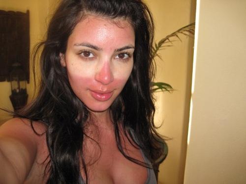 Kimberly-Noel-Kardashian-Sunburn