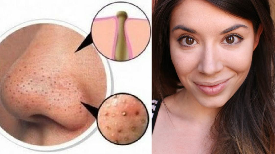 Cosmetici i pori di faccia restringenti