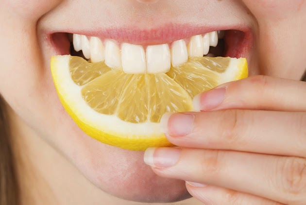 gallery_big_lemon_teeth_whitening