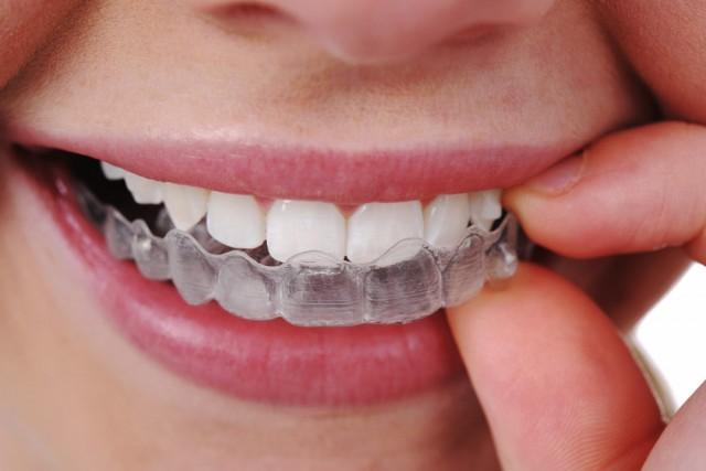 apparecchio trasparente denti storti
