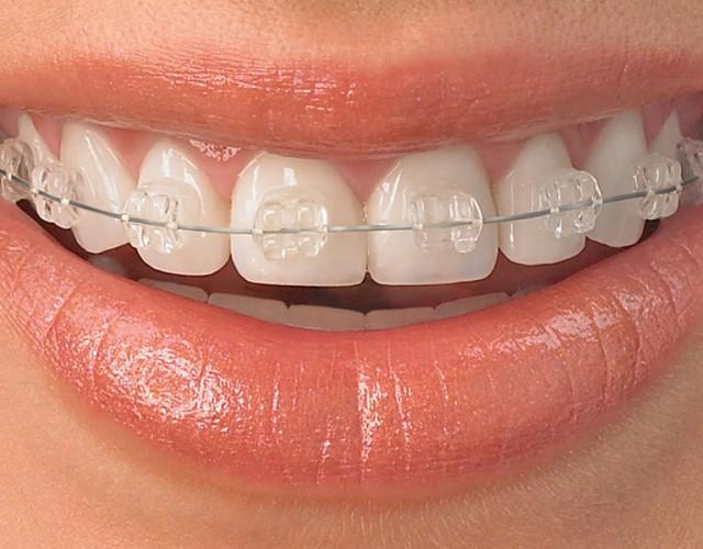 denti storti apparecchio