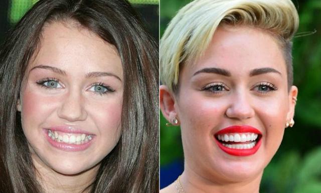 Miley Cyrus denti storti prima e dopo