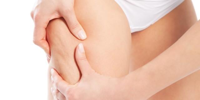 La cavitazione per sconfiggere la cellulite