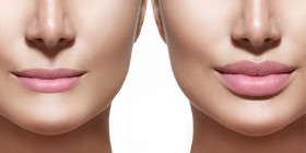 Filler Labbra: per avere labbra più voluminose e definite