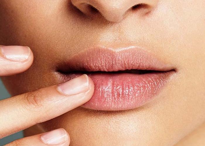 Conseguenze filler labbra